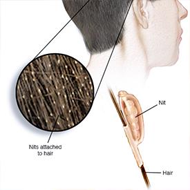 Head lice diagram